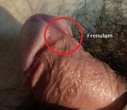 Frenulum breve dr tan and partners