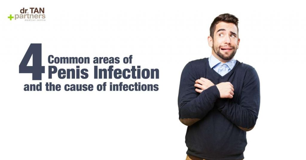 4 common areas of penis infection