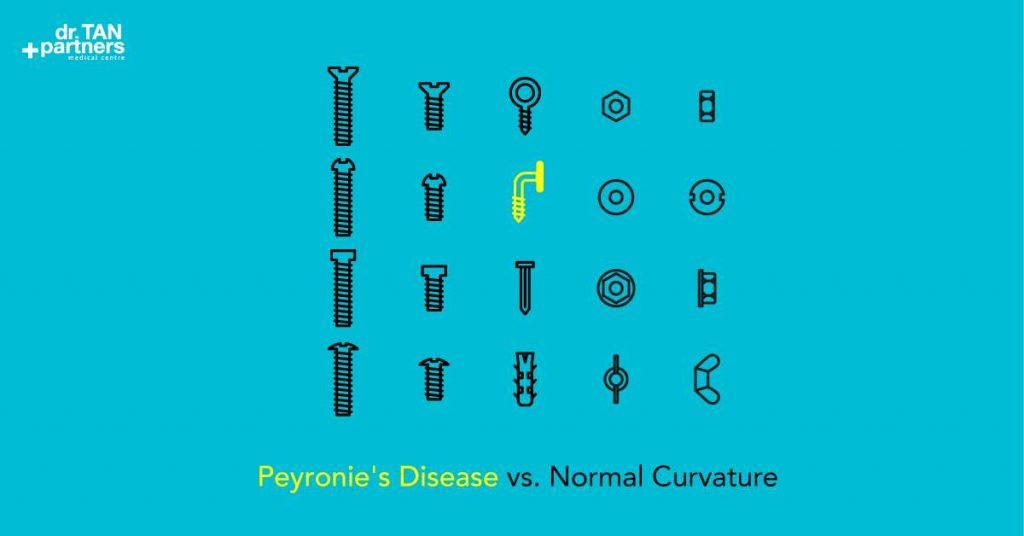 peyronie disease information and comparison