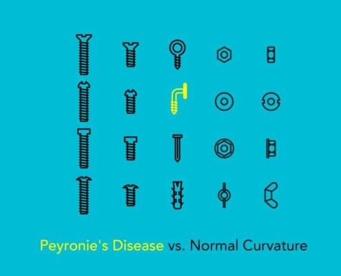 peyronie disease information and comparison
