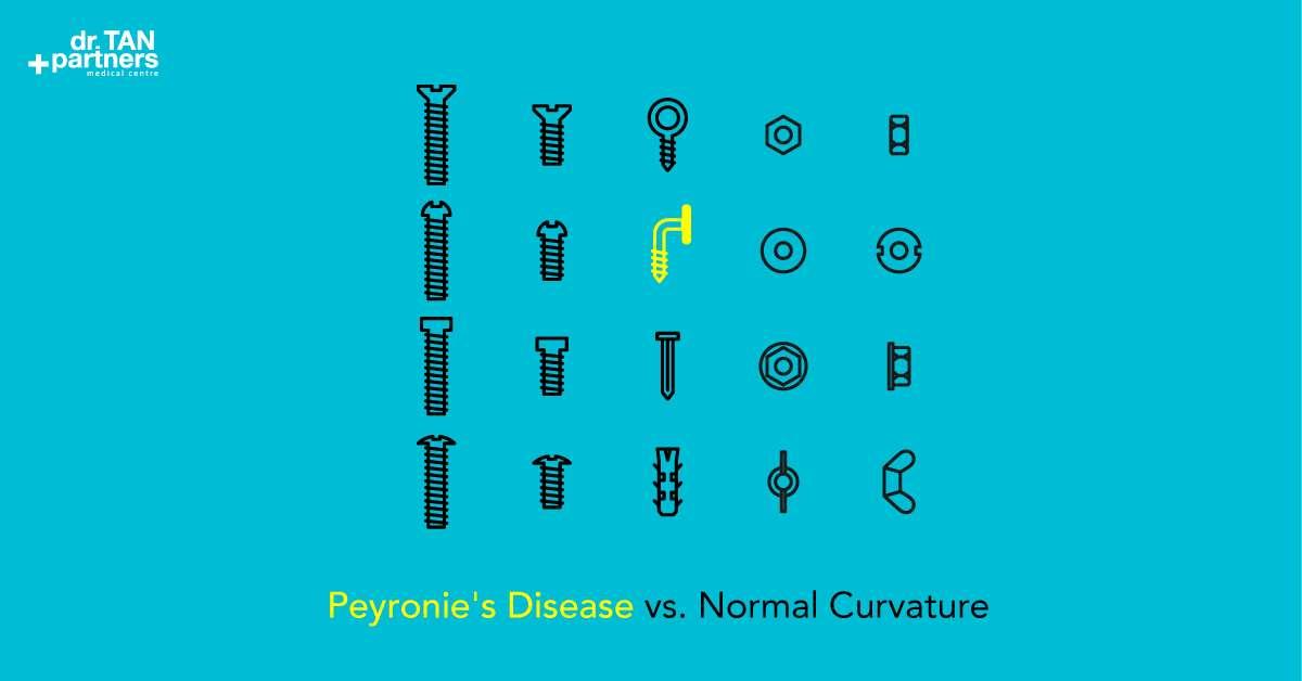 Peyronie Disease Treatment   Bent Curved Penis   Men's ...