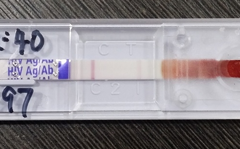 HIV test showing a positive result.
