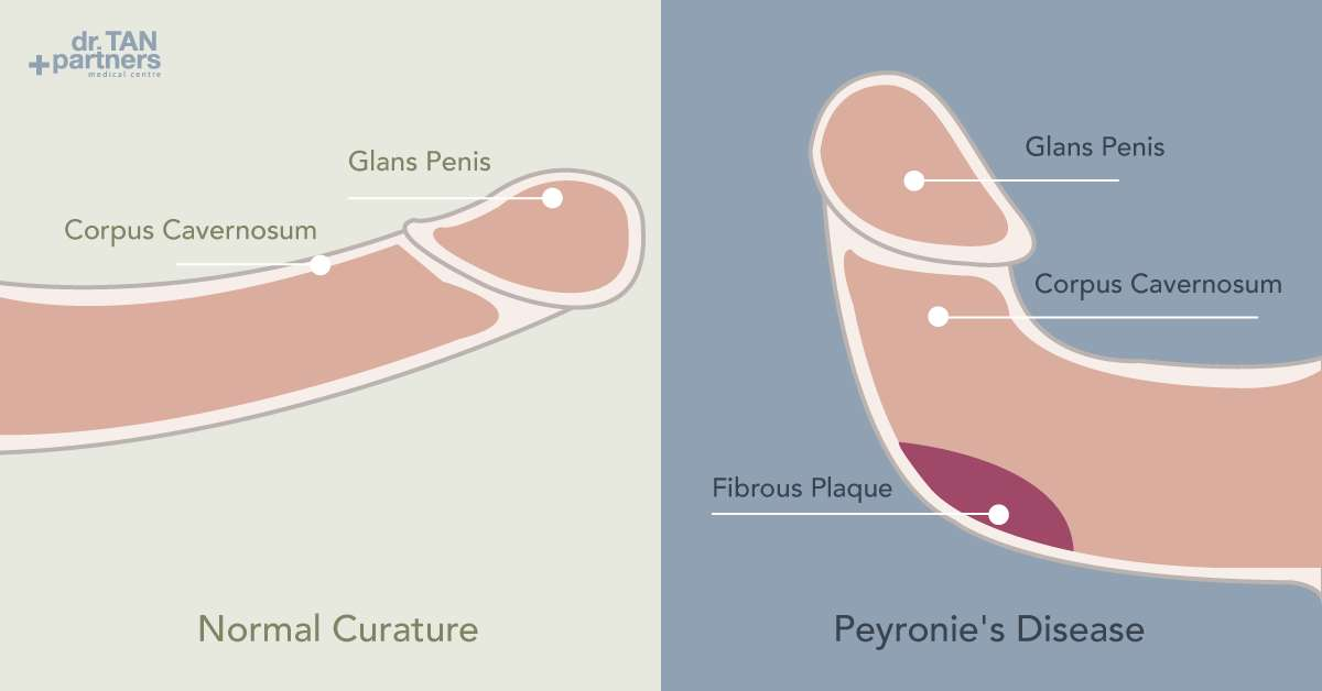 How to fix the bend in a penis naturally without surgery