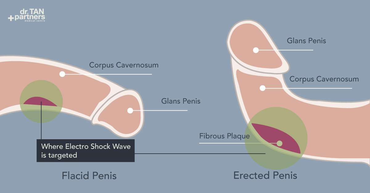Penile Cancer Cancer Of The Penis Causes, Symptoms Treatment