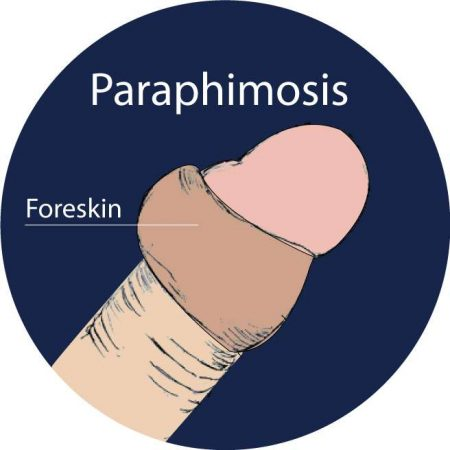 paraphimosis-singapore-treatment-clinic-2