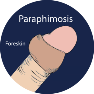 paraphimosis-singapore-treatment-clinic-2