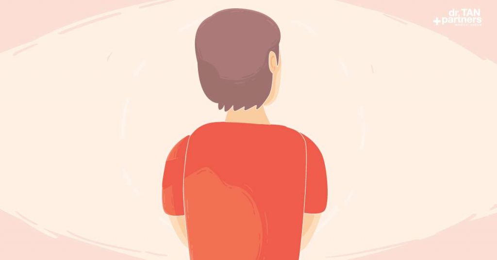 Hypogonadism-(Testosterone-Deficiency-Syndrome)-singapore