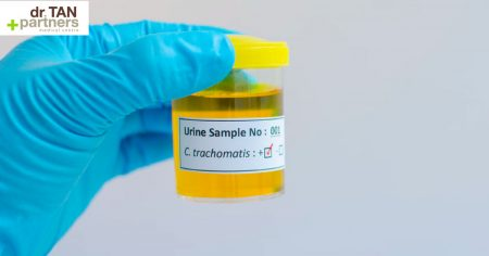 Chlamydia urine test for sexual function