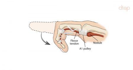 Trigger-finger 1