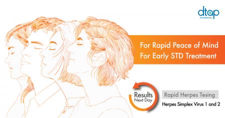 herpes testing